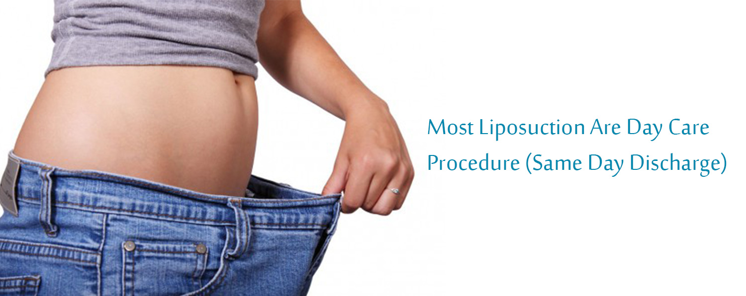 best liposuction in chandigarh