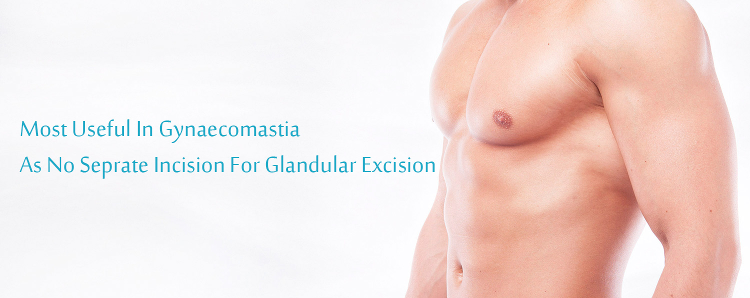 Liposuction Clinic in Chandigarh