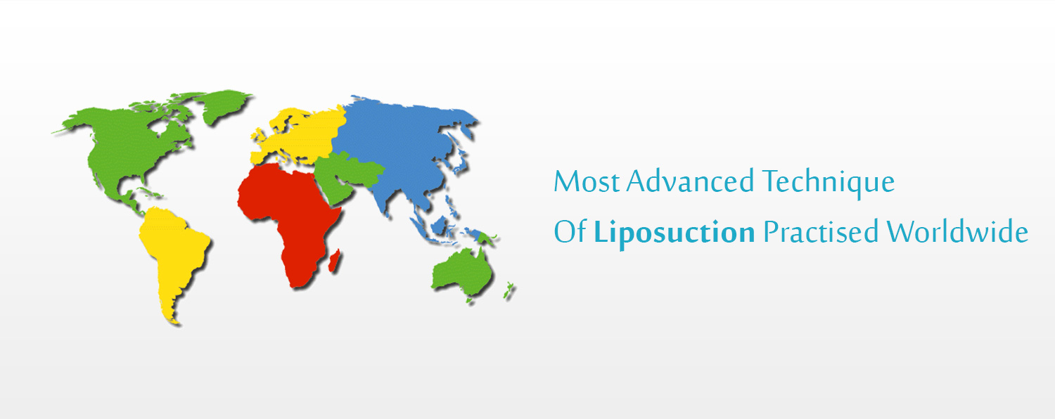 liposuction Cost in Chandigarh