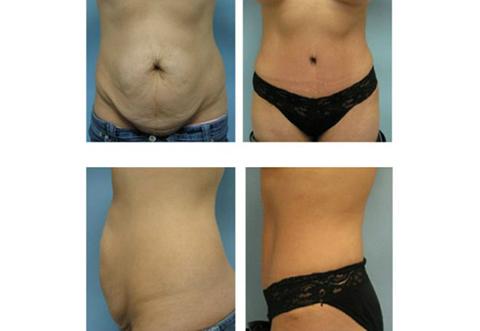 Liposuction in Chandigarh, Ultrasonic Liposuction Cost in Chandigarh